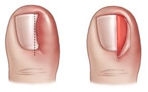 Экзодерил от грибка ногтей цена киев