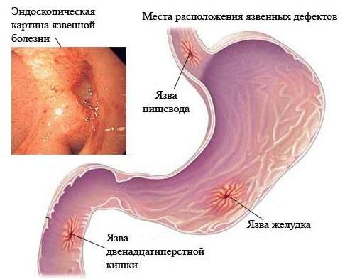 Язва желудка и двенадцатиперстной кишки - причины, диагностика и лечение язвы