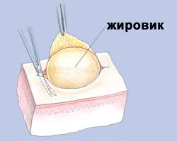 Жировик в разрезе