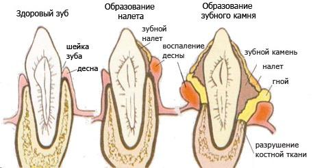 Образование зубного налета и камня