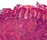 Лечение различных форм гастрита